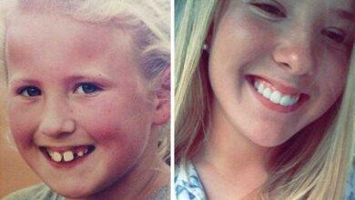 Photo of 20 transformações quase inacreditáveis de pessoas que tinham dentes fora do lugar