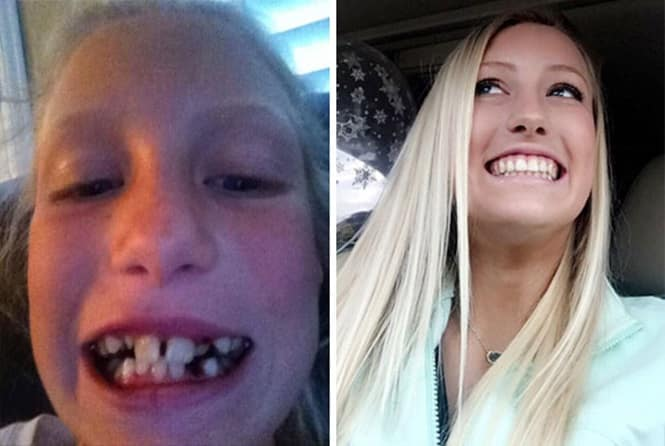 20 transformações quase inacreditáveis de pessoas que tinham dentes fora do lugar