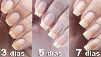 Foto de 5 formas de como fazer as unhas crescerem mais rápido
