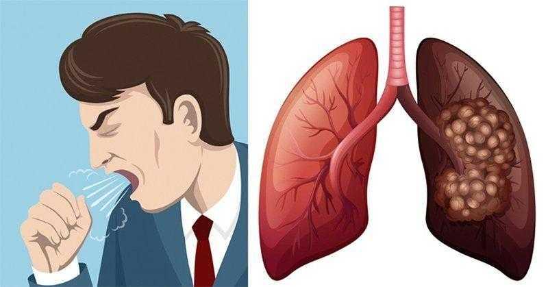 Conheça 8 sinais de alerta de câncer no pulmão