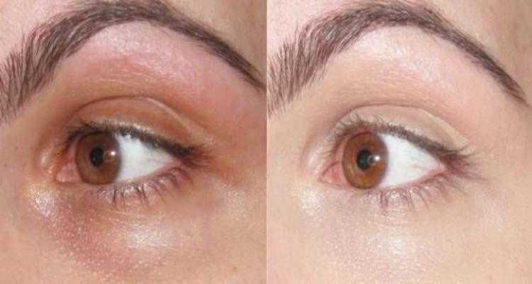 Receita de bicarbonato de sódio para manchas em volta dos olhos