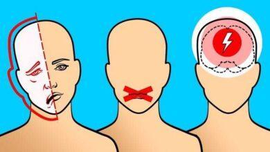 8 avisos do seu corpo antes de um AVC