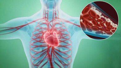 9 Sinais de que suas artérias estão entupidas