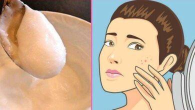 Foto de 2 Maneiras para eliminar manchas na pele