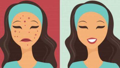 Foto de 3 receitas praticas para acabar com a acne