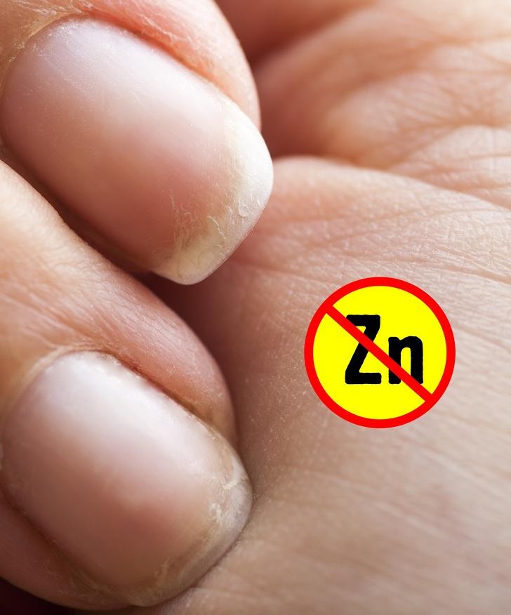 7Coisas que asmãos podem revelar sobre sua saúde