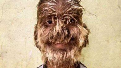 Foto de O lobisomem da vida real: doença rara faz rapaz ter rosto coberto de pelos