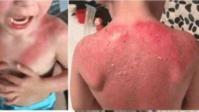 Pai faz alerta sobre o protetor da Peppa Pig que queimou completamente a pele de seu filho de 3 anos de idade
