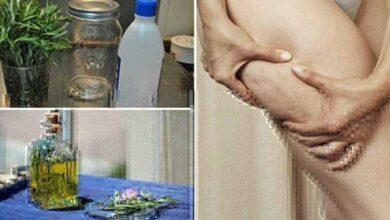 Foto de Como fazer álcool de Alecrim e elimine a gota, varizes, dor muscular e celulite