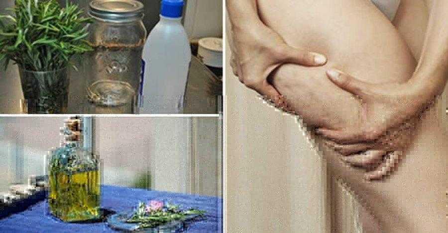 Como fazer álcool de Alecrim e elimine a gota, varizes, dor muscular e celulite d