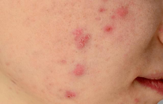 11 Sinais que revelam que sua pele está sofrendo os efeitos do estresse 1