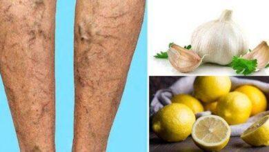 Como fazer um creme caseiro de limão e alho para eliminar varizes