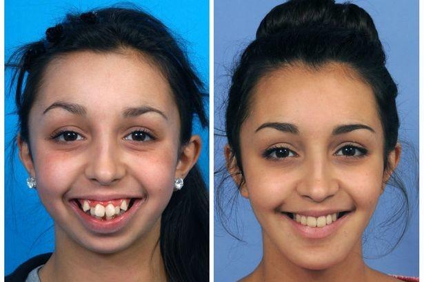 Ela Tinha uma Deformação na Mandíbula e a Cirurgia ficou INCRÍVEL!2