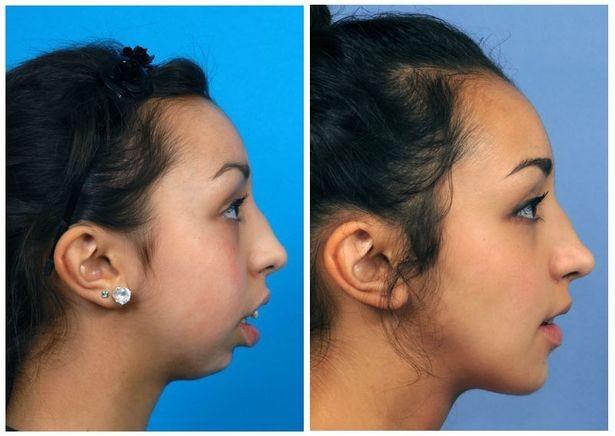 Ela Tinha uma Deformação na Mandíbula e a Cirurgia ficou INCRÍVEL!