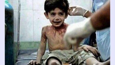 """Foto de """"Quando eu morrer vou contar tudo a Deus"""", Afirma criança vitima da guerra na Síria"""