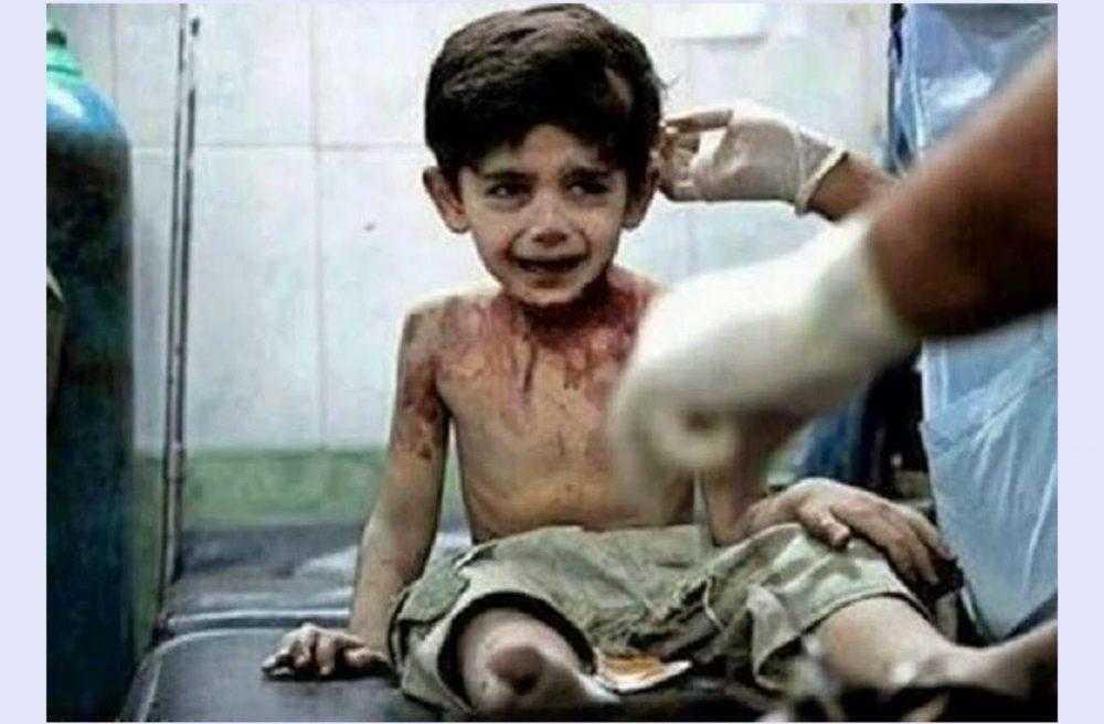 """""""Quando eu morrer vou contar tudo a Deus"""", Afirma criança vitima da guerra na Síria"""