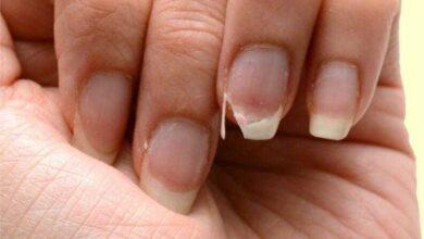 Foto de Como fortalecer as unhas enfraquecidas e impedir que elas quebrem