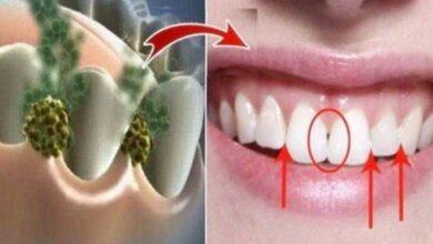 Destrua o mau hálito utilizando este remédio natural tf