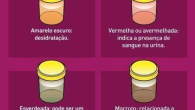 Isto é o que a cor da urina indica sobre sua saúde f