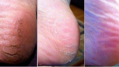 Foto de 4 Remédios caseiros simples para rachaduras nos pés