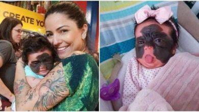 Bebê é chamada de monstro por causa de sua aparência e mãe desabafa d d