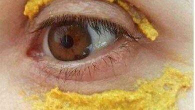 Benefícios de aplicar açafrão em volta dos olhos 00S