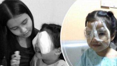 Foto de Filha perde visão por conta do uso de celular, e pai comove com relatos após milagre acontecer
