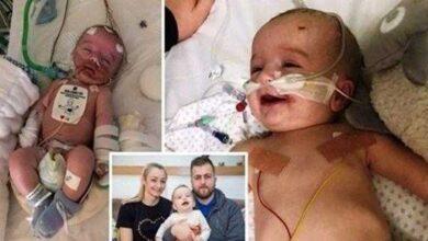 Foto de Após 5 dias em coma, bebê acorda sorrindo para o pai