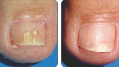 Elimine rapidamente os fungos dos pés e das mãos com essa receita r