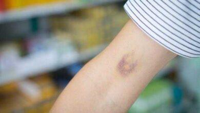 Hematomas sem motivo aparente pode ser sinal de alguma dessas doenças