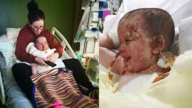 Foto de Garoto que teve o corpo queimado passa por recuperação incrível