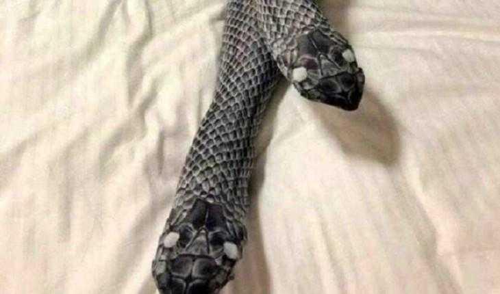 Mulher usa meia-calça diferente, assusta o marido e vai parar no hospital