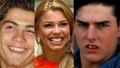 Foto de Fotos que mostram o antes e depois do sorriso dos famosos deixarão todos perplexos