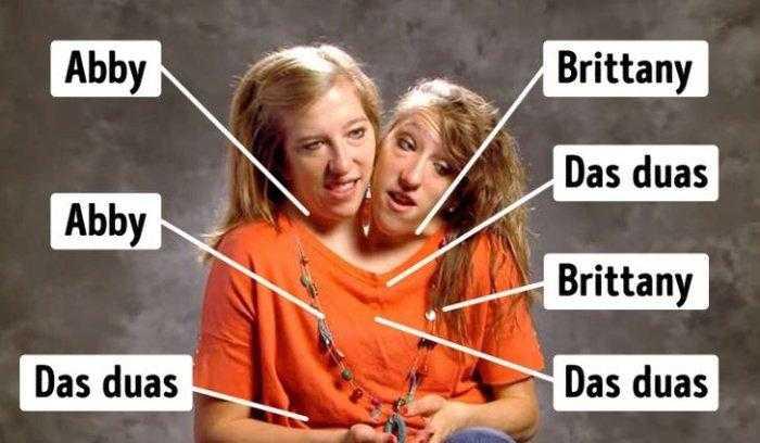 """1592532959 646 Como estao as irmas siamesas mais famosas do mundo """"Abby Como estão as irmãs siamesas mais famosas do mundo: """"Abby e Brittany"""""""