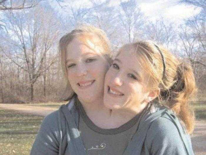 """1592532959 947 Como estao as irmas siamesas mais famosas do mundo """"Abby Como estão as irmãs siamesas mais famosas do mundo: """"Abby e Brittany"""""""