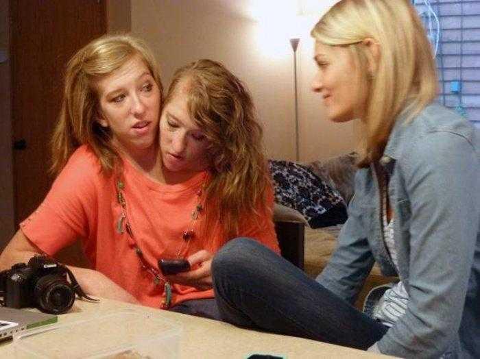 """1592532961 920 Como estao as irmas siamesas mais famosas do mundo """"Abby Como estão as irmãs siamesas mais famosas do mundo: """"Abby e Brittany"""""""