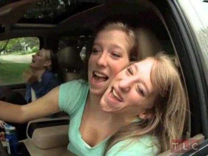 """1592532962 492 Como estao as irmas siamesas mais famosas do mundo """"Abby Como estão as irmãs siamesas mais famosas do mundo: """"Abby e Brittany"""""""
