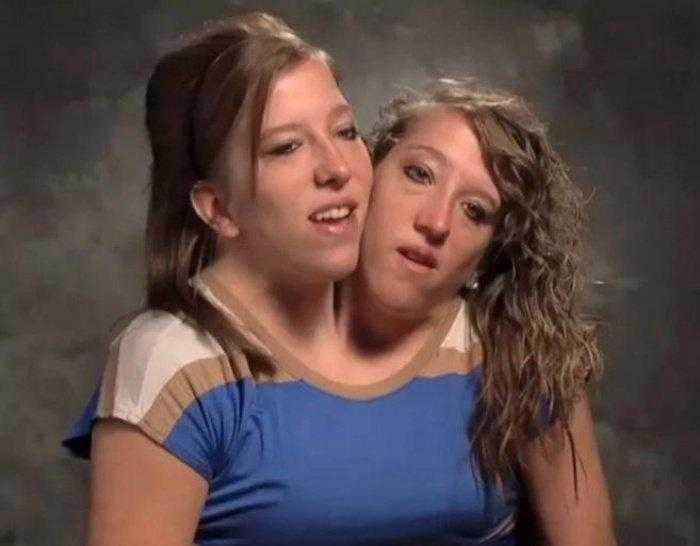 """1592532963 747 Como estao as irmas siamesas mais famosas do mundo """"Abby Como estão as irmãs siamesas mais famosas do mundo: """"Abby e Brittany"""""""