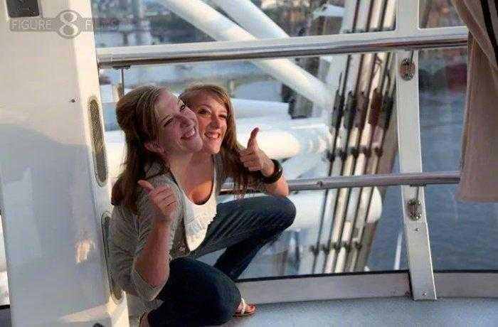 """1592532965 111 Como estao as irmas siamesas mais famosas do mundo """"Abby Como estão as irmãs siamesas mais famosas do mundo: """"Abby e Brittany"""""""