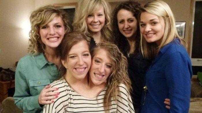 """1592532966 329 Como estao as irmas siamesas mais famosas do mundo """"Abby Como estão as irmãs siamesas mais famosas do mundo: """"Abby e Brittany"""""""