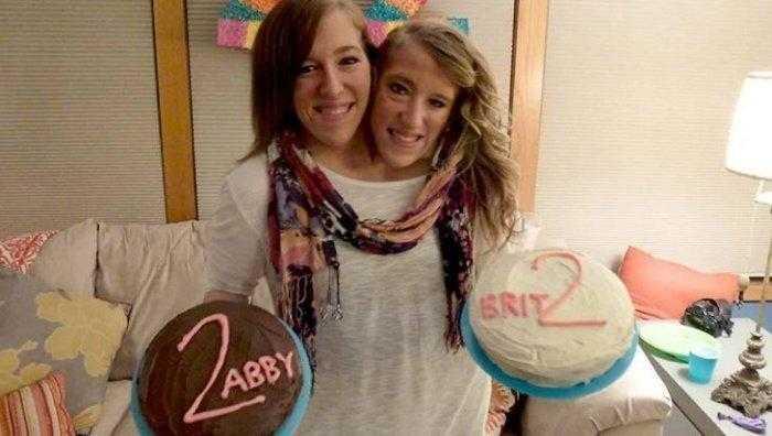 """1592532966 60 Como estao as irmas siamesas mais famosas do mundo """"Abby Como estão as irmãs siamesas mais famosas do mundo: """"Abby e Brittany"""""""