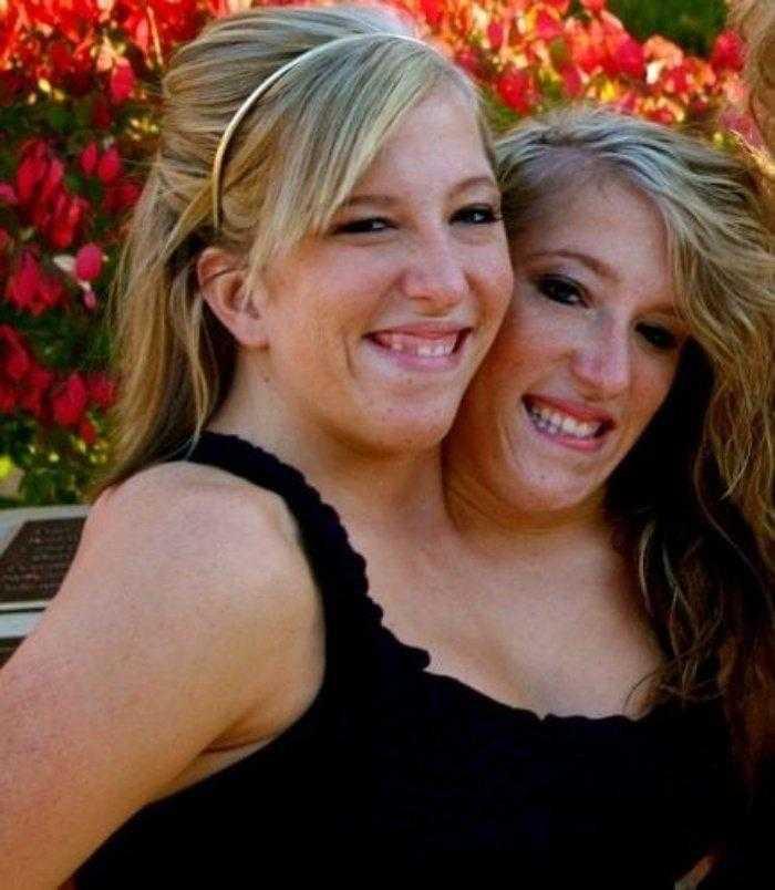 """1592532967 589 Como estao as irmas siamesas mais famosas do mundo """"Abby Como estão as irmãs siamesas mais famosas do mundo: """"Abby e Brittany"""""""