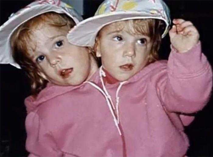 """Como estao as irmas siamesas mais famosas do mundo """"Abby Como estão as irmãs siamesas mais famosas do mundo: """"Abby e Brittany"""""""