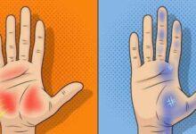 Foto de 9 coisas que suas mãos revelam sobre sua saúde