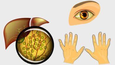 Foto de 5 sintomas que podem indicar que você está com o fígado doente