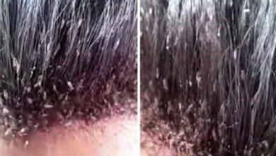 Foto de Passageiros se chocam ao ver o que tinha no cabelo da mulher e o vídeo viraliza