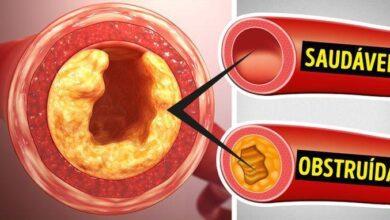 Foto de 10 alimentos para você desentupir as artérias, normalizar a pressão e perder peso