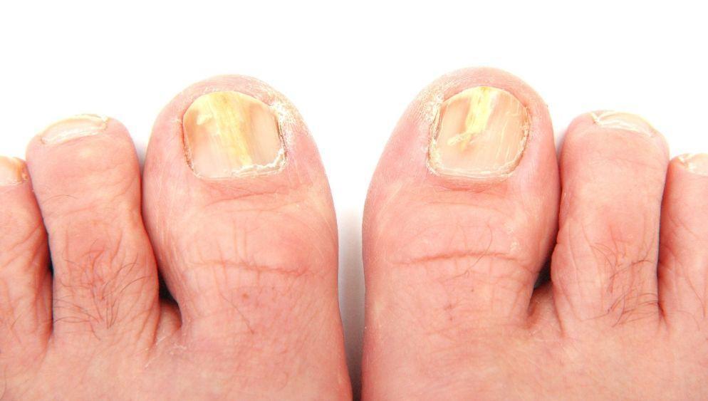 Elimine rapidamente os fungos dos pés e das mãos com essa receita!